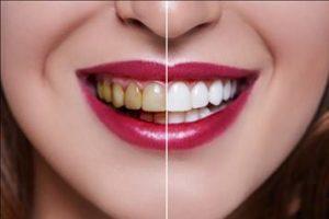 Antes y después del tratamiento.
