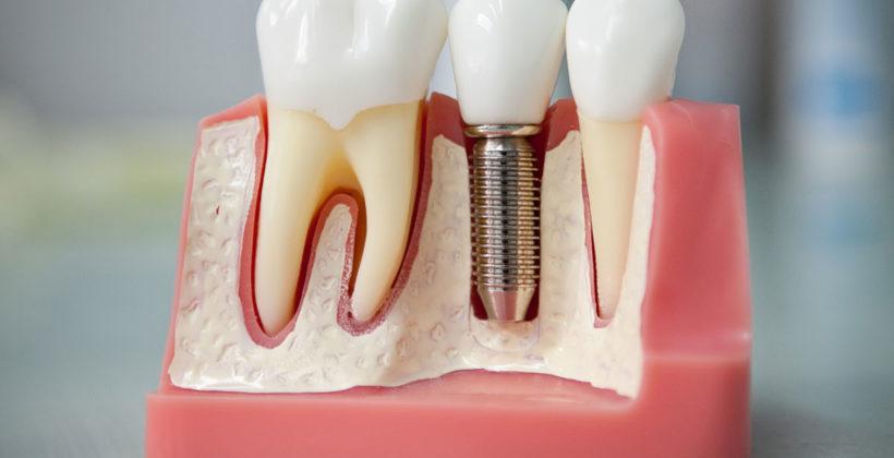 Proceso de colocación de un implante