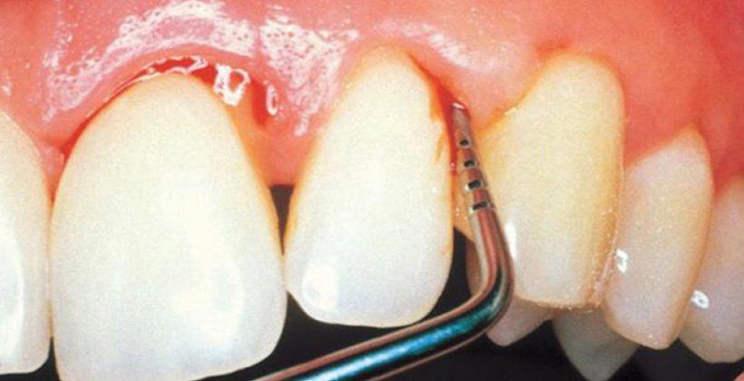 Periodontitis, enfermedad periodontal