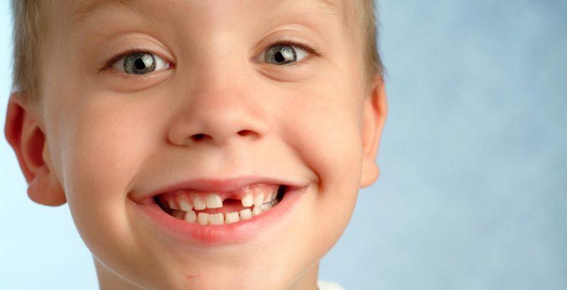 ¿Qué hacer si un niño recibe un golpe en un diente?