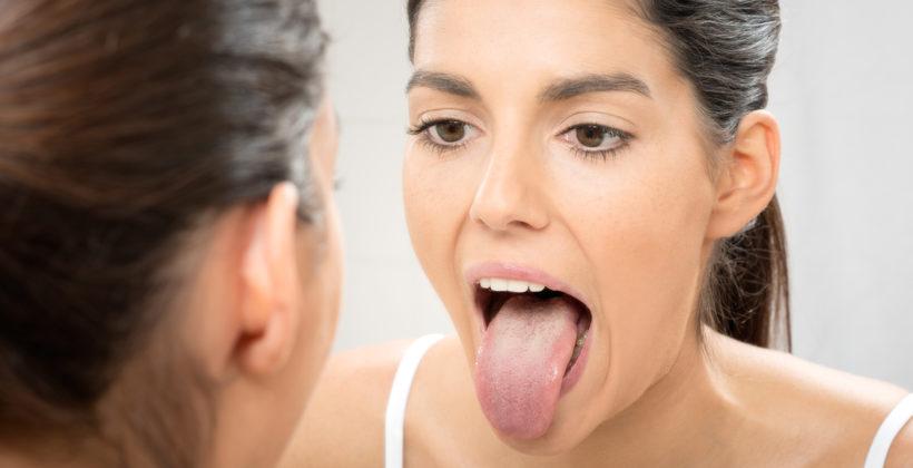 ¿Por qué limpiar la lengua es bueno para la salud dental en general?