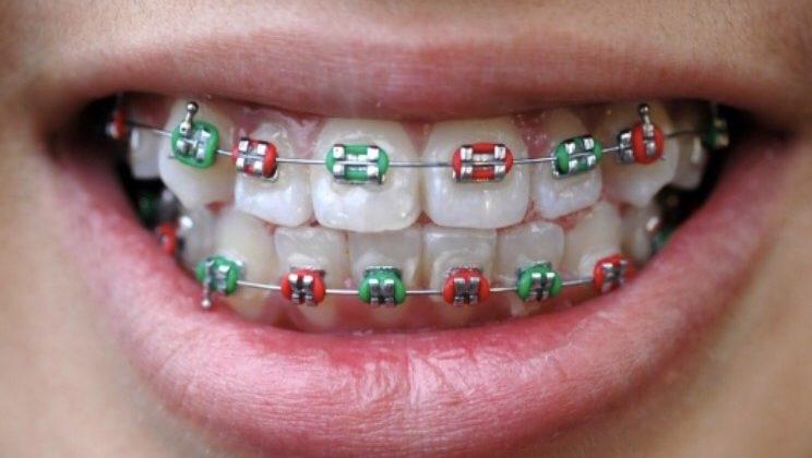 A qué edad es recomendado llevar al niño al dentista