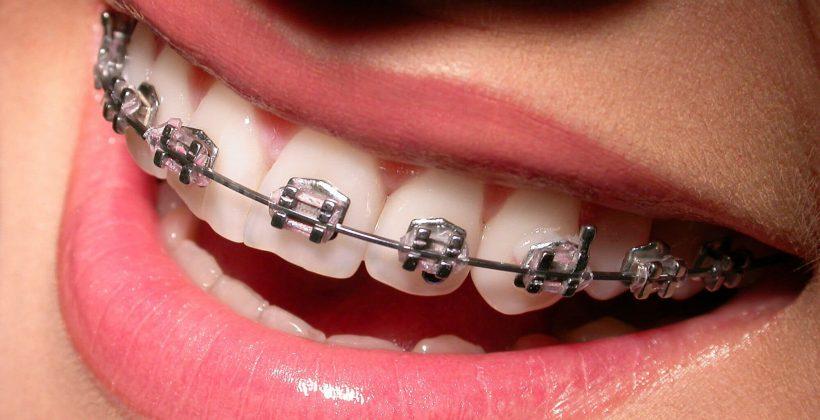 Cómo cuidar de tu ortodoncia