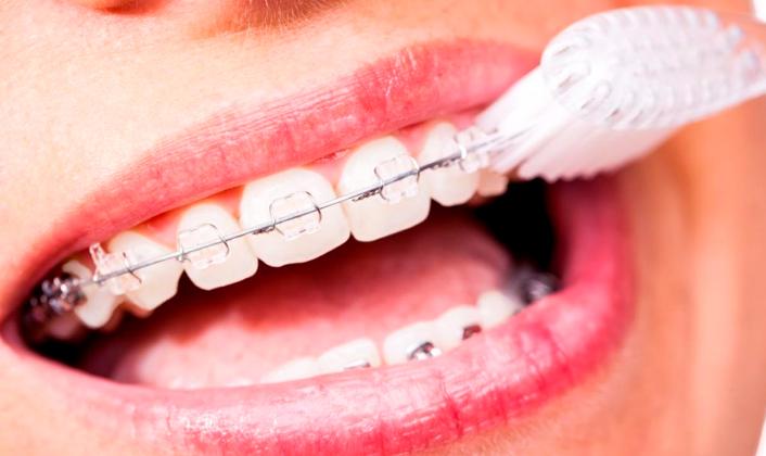 Consejos para cuidar tus dientes con brackets