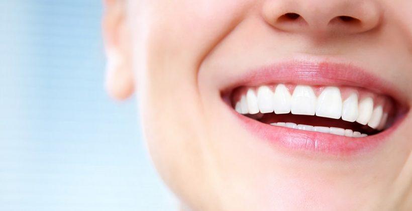 Cómo cuidar de tus carillas dentales