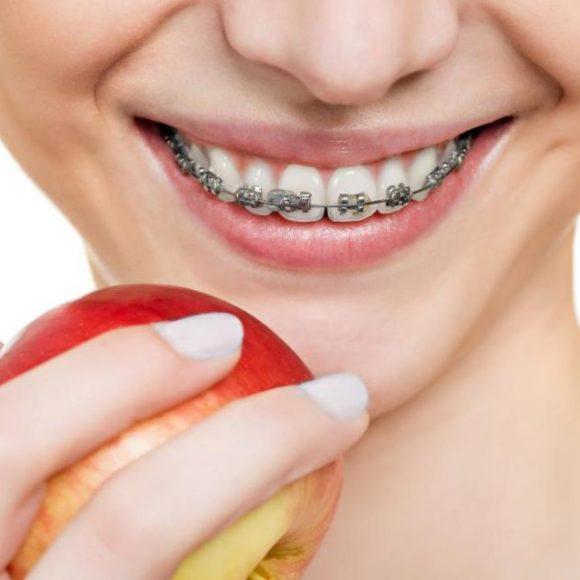 3 maneras de mantener la higiene dental con ortodoncia