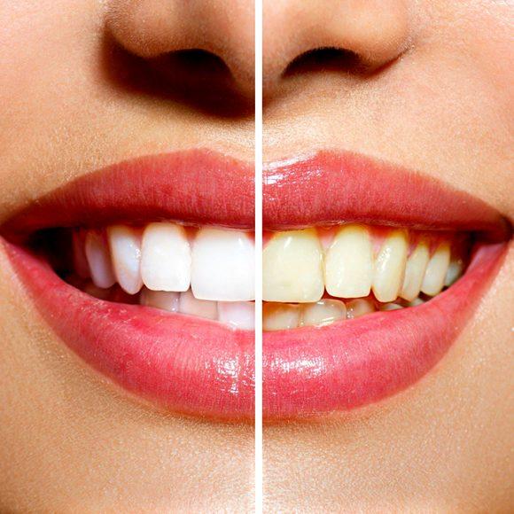 4 cosas a saber del blanqueamiento dental