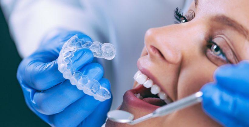 Lo que debe saber sobre el blanqueamiento dental